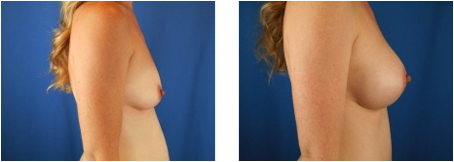 Before & After Breast Augmentation | Emmett Plastic Surgery | Lone Tree, CO