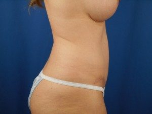 Tummy Tuck Denver, CO | Mini Tummy Tuck Lone Tree | Body Sculpting